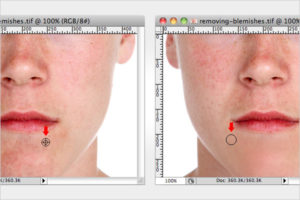 2-removing-blemishes-in-photoshop